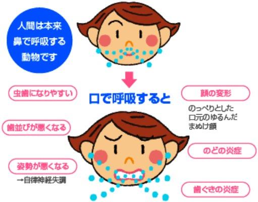口呼吸の影響
